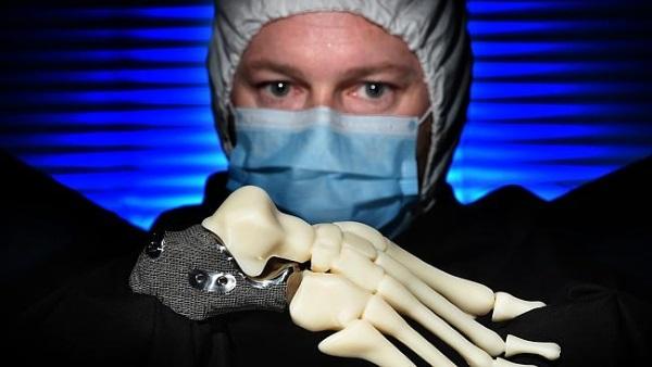 heel-bone-3d-printed-cancer-calcaneus-2
