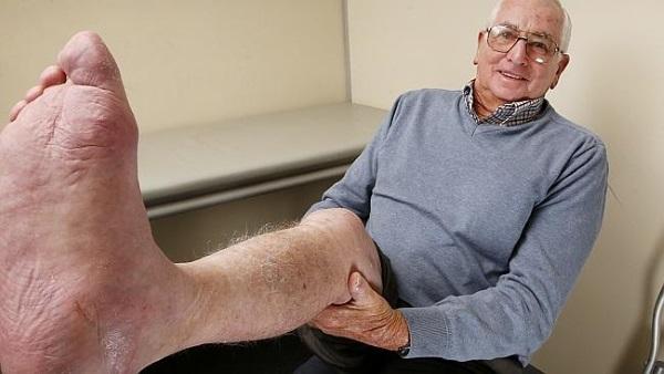 heel-bone-3d-printed-cancer-calcaneus-3