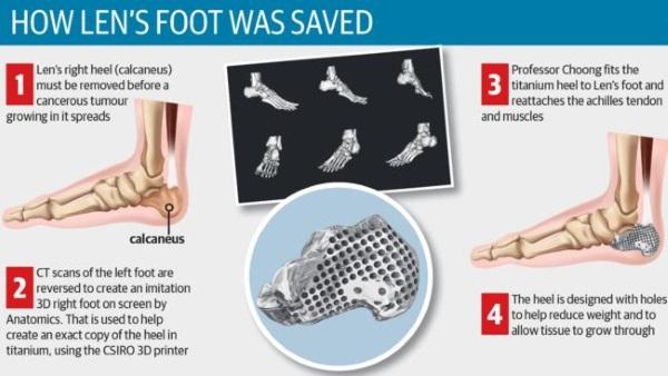 heel-bone-3d-printed-cancer-calcaneus-4